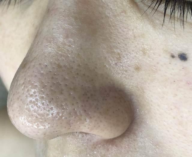 顔剃り(小鼻の黒ずみ)
