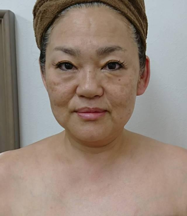 小顔造形eyeリフトケア(シェービング付)
