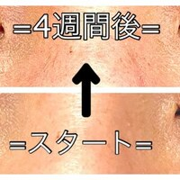 まつげ毛根細胞培養液 Bamiru (バミル) 使用 ~経過3~4週間~